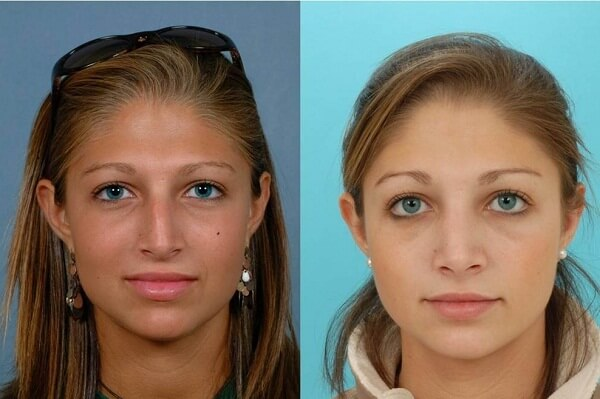 Nose Reshaping Rhinoplasty