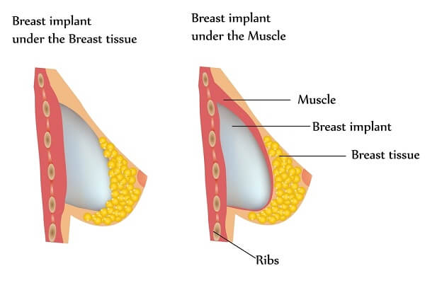 Breast Implants Illustration