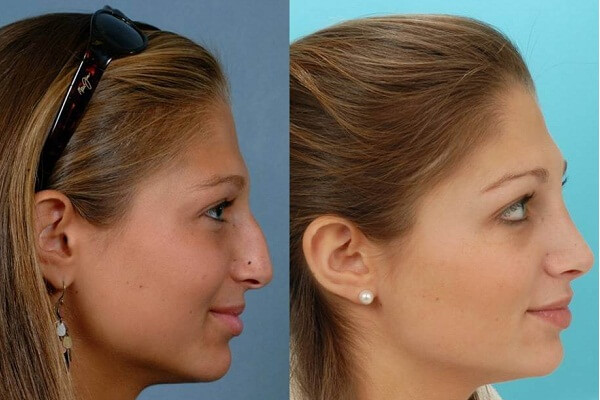 Rhinoplasty Nose Reshaping