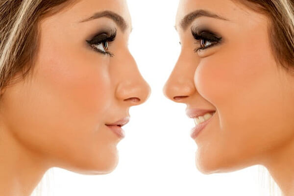 Nose Plastic Surgery Cost in Japan